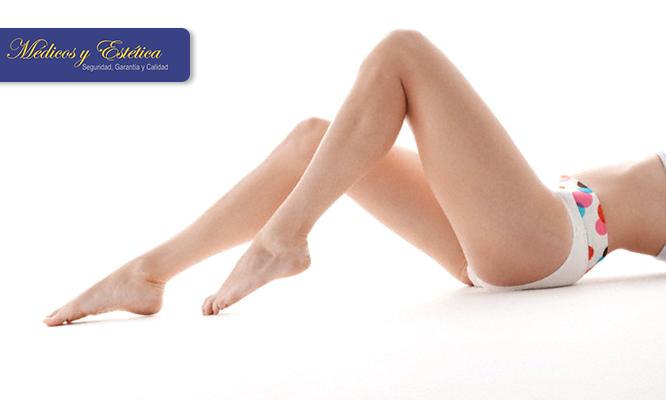 Eliminar varices piernas precio
