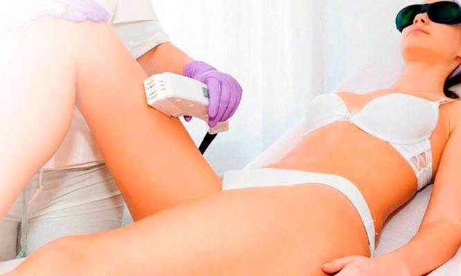45 sesiones de depilacion laser IPL en 5 zonas y mas