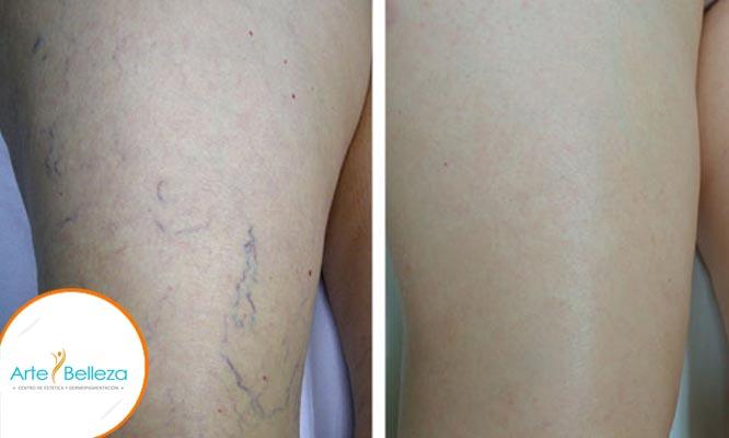 QSWITCH 2 o 4 sesiones de tratamiento Spider laser y mas