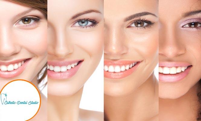 2 3 o 4 sesiones de Blanqueamiento con Odontograma Profilaxis Aplicacion de Fluor