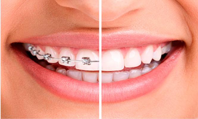 Brackets Transparentes o Metalicos y mas Recupera tu sonrisa ¡Ya!