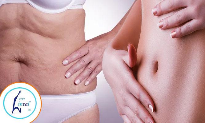 Disminuir la Celulitis y Flacidez media en 5 o 10 sesiones