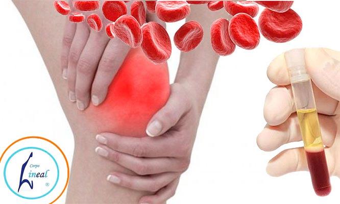 Articulaciones tendones y ligamentos sanos en 1 2 o 4 sesiones de plasma y mas