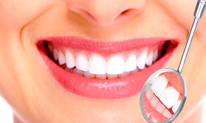 Resultado de imagen para blanqueamiento dental