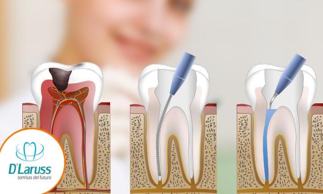 Tratamiento de endodoncia de dos conductos radiografia y mas
