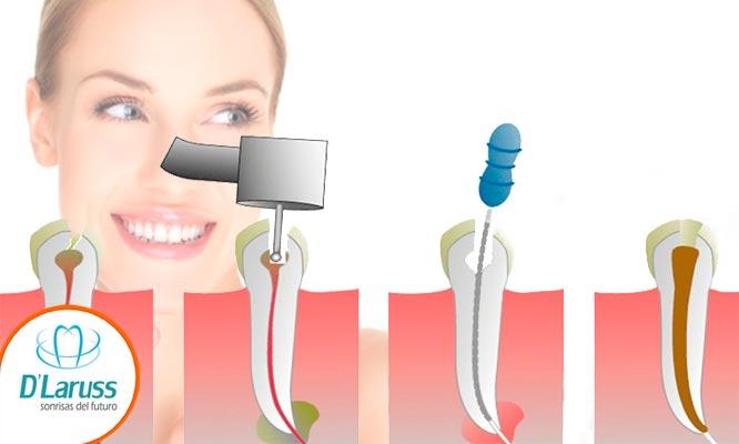Tratamiento de endodoncia radiografia y mas
