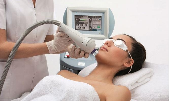 4 sesiones de fotorejuvenecimiento facial manchas o acne con IPL