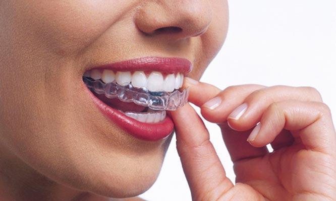 Ferula miorelajante y de proteccion fluorizacion Odontograma completo y mas