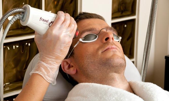 San Borja Rejuvenecimeinto facial full face laser y mas
