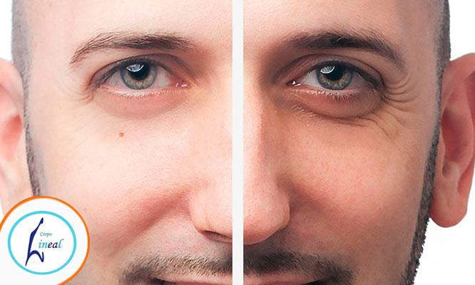2 sesiones de tratamiento para ojeras y parpados carboxiterapia drenaje linfatico