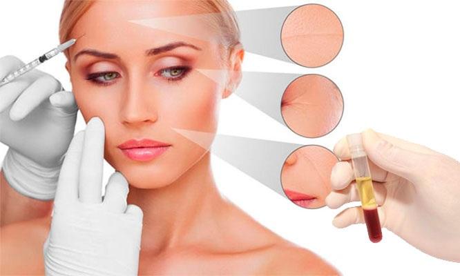 ¡Recupera la juventud y vitalidad de tu rostro! con el plasma Rico en Plaquetas en OKARA