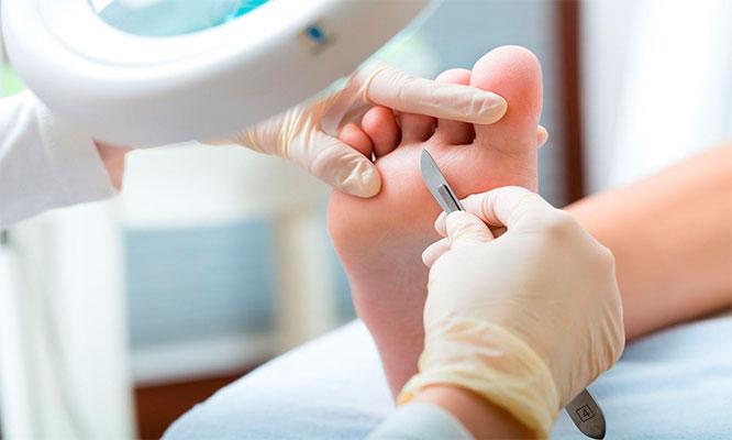 Tratamiento completo de podologia