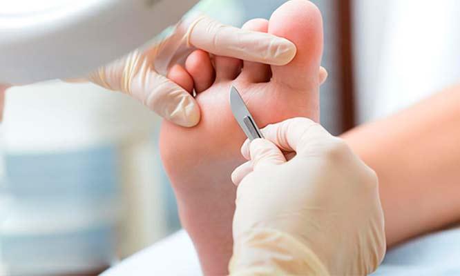 Uñas acrilicas en pies tratamiento podologico integral