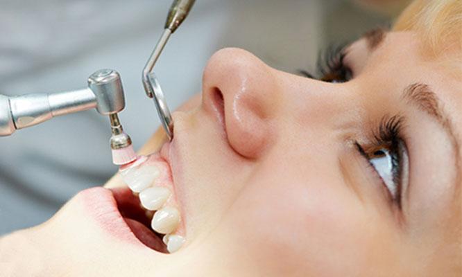 Jesus Maria Paquete de limpieza Odontologica profesional con desinfeccion gingival y mas