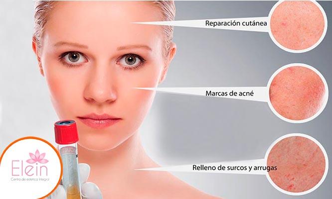 Plasma facial (PRP) mascara LED oxigenoterapia