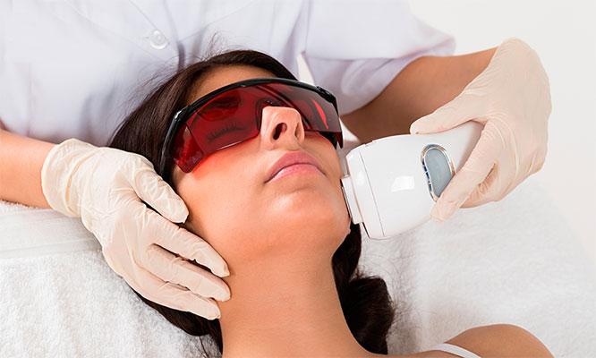 5 sesiones de depilacion de rostro con laser IPL