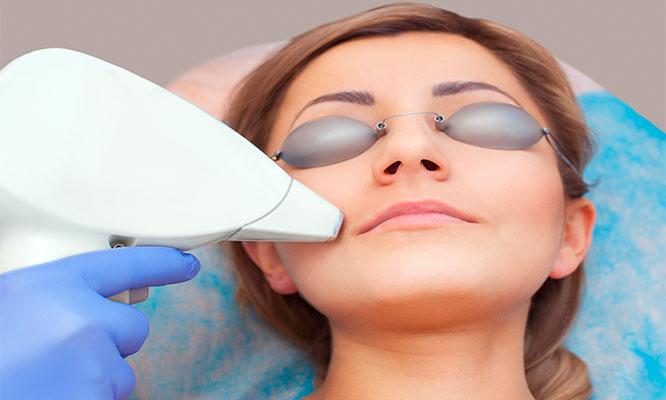 Rejuvenecimiento Facial con laser IPL radiofrecuencia