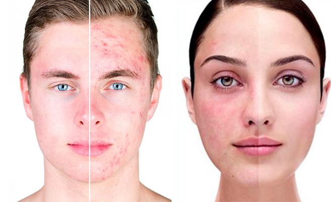 Tratamiento dermatologico anti acne o Rosacea con laser bactericida