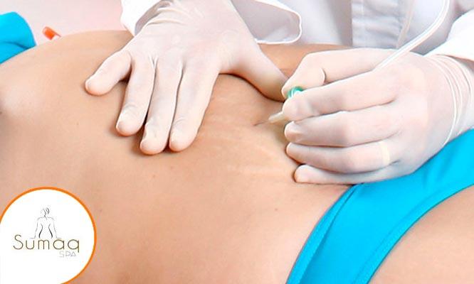 10 visitas de carboxiterapia en cuerpo completo