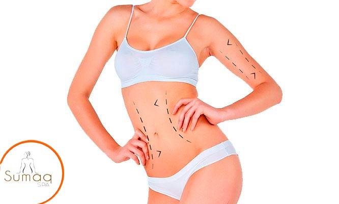 Lipoescultura sin cirugia Carboxiterapia Ultracavitacion Termoterapia Y mas