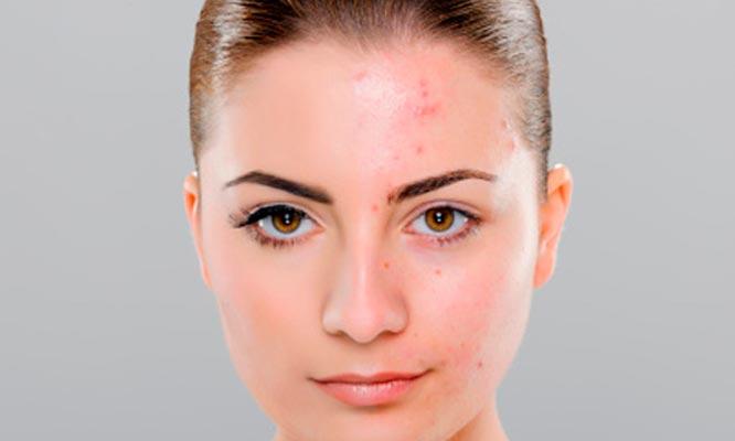 Lince Tratamiento Dermatol 243 Gico Con L 225 Ser Para Acn 233 Y M 225 S